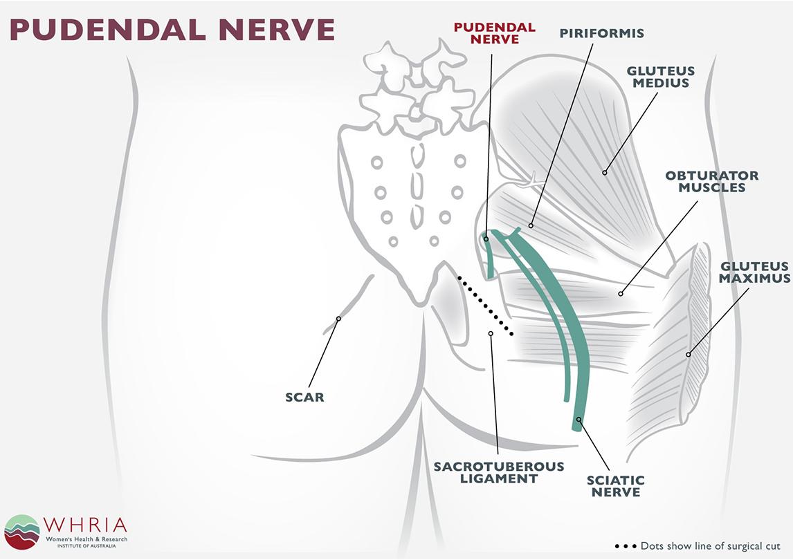 Pudendal Neuralgia Treatment & Symptoms - WHRIA